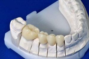 Несъемное протезирование полости рта