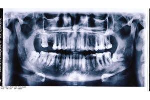 Ретенированный зуб мудрости