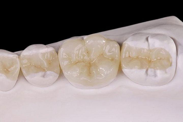 Восстановление зуба вкладками