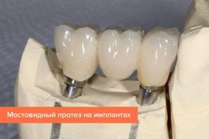 Имплантация или классическое протезирование
