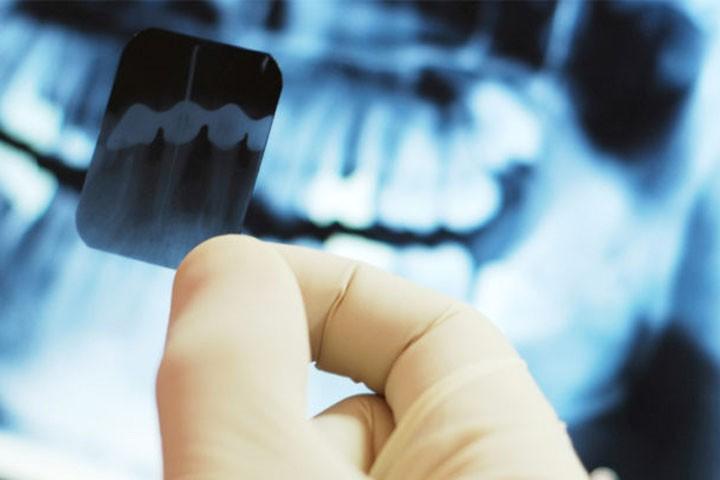 Профессиональная консультация стоматолога