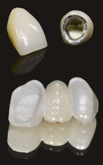 зубные коронки металлокоронки